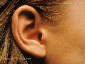 اتوپلاستی یا جراحی زیبایی گوش چیست ؟