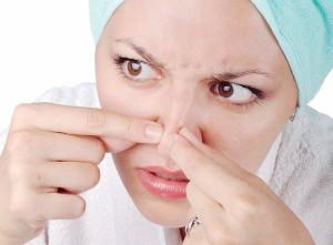 چگونه جوش های سر سیاه روی بینی را از بین ببریم ؟