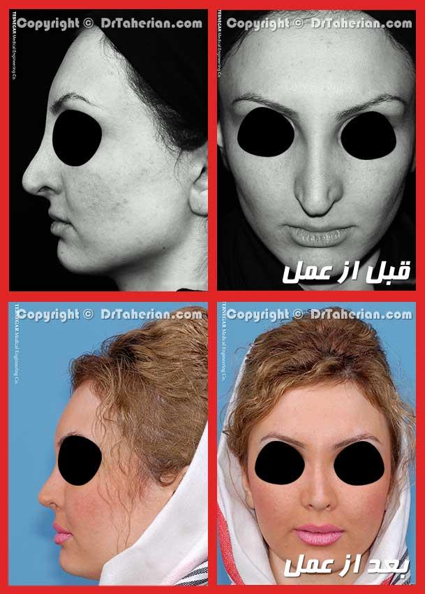 عمل ترمیمی بینی توسط دکتر طاهریان