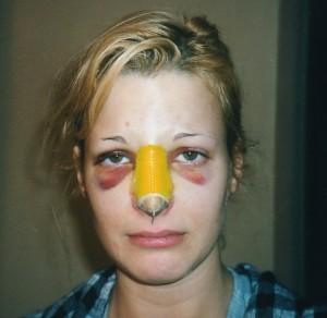یک زن 3 روز پس از عمل جراحی بینی