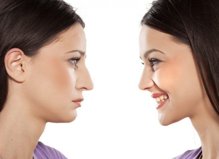 Nasal reconstructive surgery or Revision Rhinoplasty