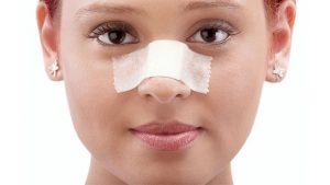 ورم بینی تا چه مدت بعد از جراحی فروکش خواهد کرد؟