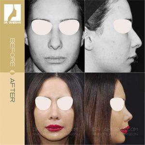 تصویر عمل بینی گوشتی 1