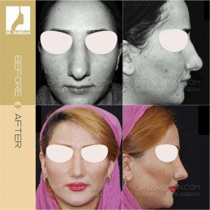 تصویر عمل بینی گوشتی 10
