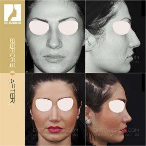 تصویر عمل بینی گوشتی 11