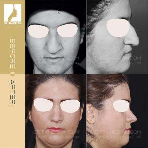 تصویر عمل بینی گوشتی 12