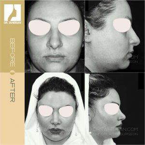 تصویر عمل بینی گوشتی 13