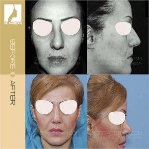 تصویر عمل بینی گوشتی 14