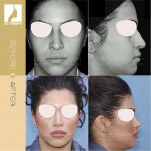 تصویر عمل بینی گوشتی 15
