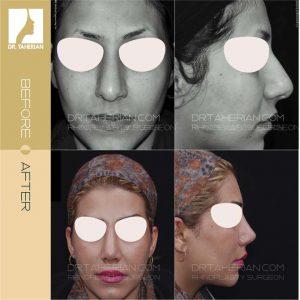 تصویر عمل بینی گوشتی 17