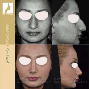 تصویر عمل بینی گوشتی 18