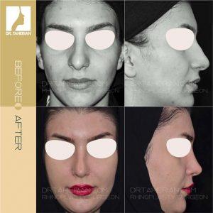 تصویر عمل بینی گوشتی 19