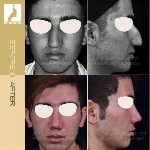 تصویر عمل بینی گوشتی 21