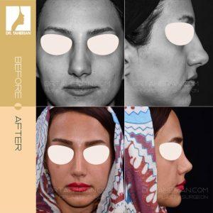 تصویر عمل بینی گوشتی 22