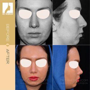 تصویر عمل بینی گوشتی 24