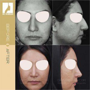 تصویر عمل بینی گوشتی 3