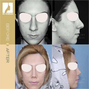 تصویر عمل بینی گوشتی 5