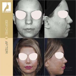 تصویر عمل بینی گوشتی 6