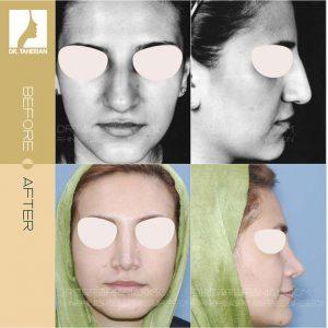 تصویر عمل بینی گوشتی  8