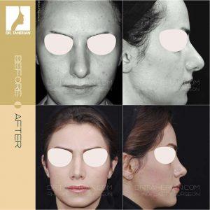 تصویر عمل بینی گوشتی 9
