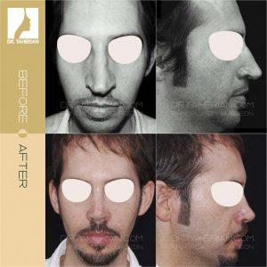عکس جراحی بینی با انحراف خارجی 2
