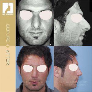 عکس جراحی بینی پهن 1