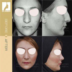 عکس جراحی بینی پهن 4