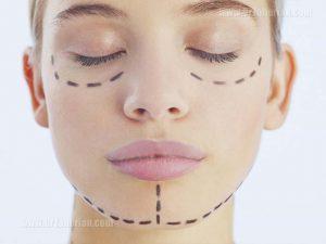 جراحی های همزمان با جراحی بینی