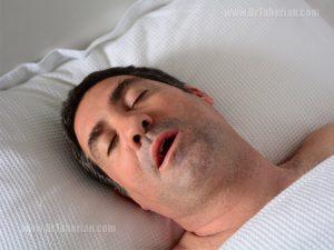 آپنه ی خواب چیست؟
