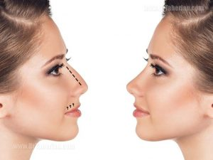 Improving the Droopy Nose by rhinoplasty