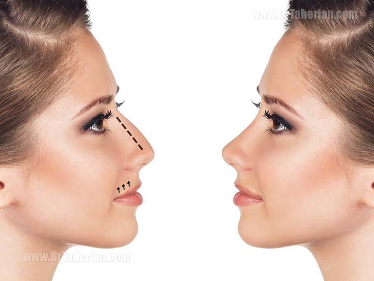 جراحی افتادگی بینی