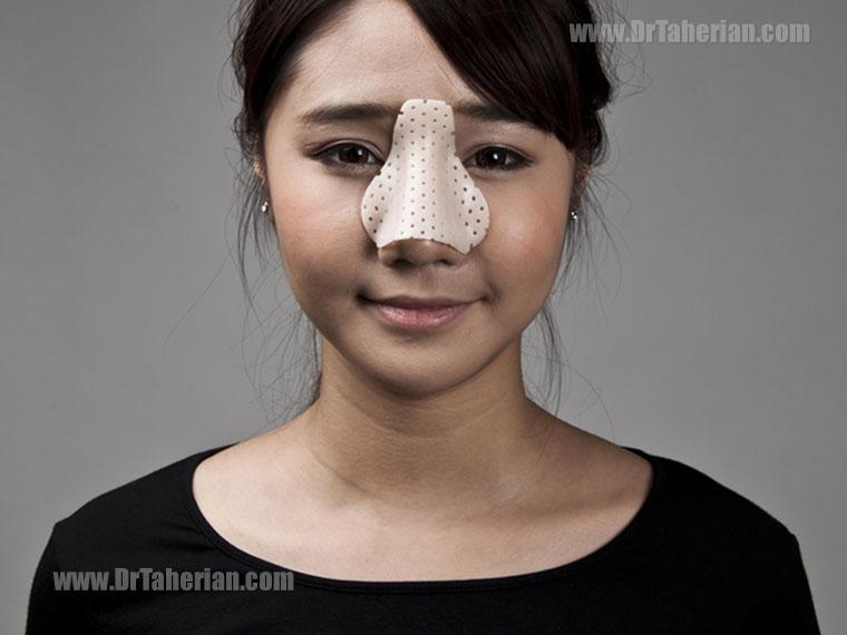 جراحی بینی در سنین پایین تر – بهترین سن برای جراحی بینی!