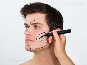 جراحی های زیبایی صورت