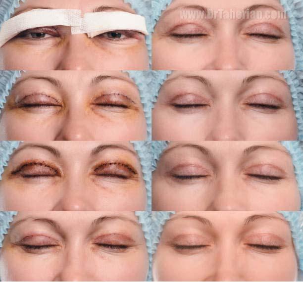 روند بهبود بعد از جراحی پلک