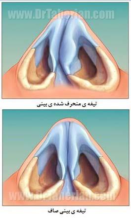 تصاویر شکستگی استخوان بینی