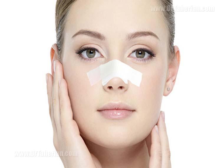 نحوه چسب زدن بینی بعد از عمل چگونه است؟