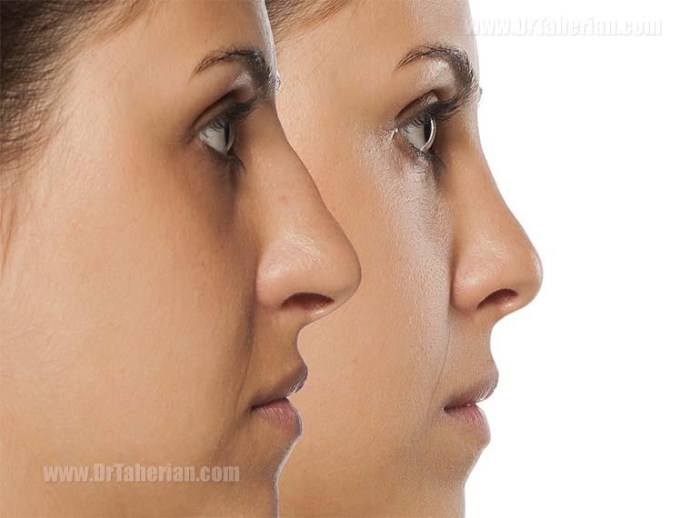 مزایای تغییر شکل بینی بدون جراحی