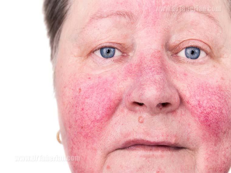 تصویر یک زن با بیماری روزاسه