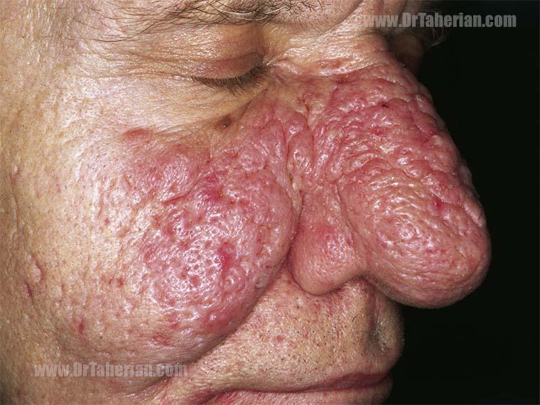 تصویر یک مرد با بیماری رینوفیما