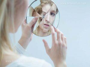 تاثیر اختلال خود زشت انگاری در جراحی های زیبایی