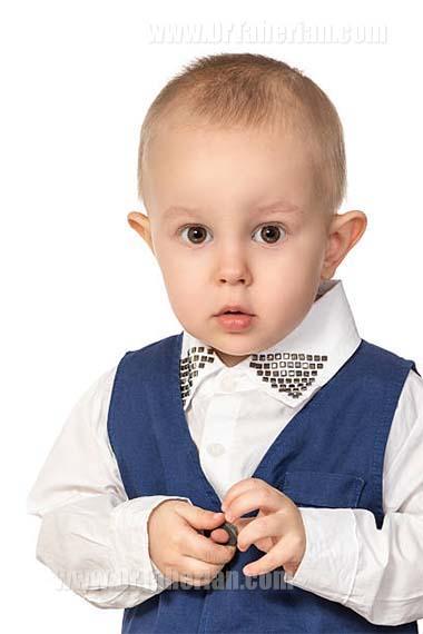 اتوپلاستی برای کودکان