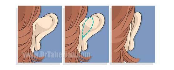 روش انجام جراحی زیبایی گوش