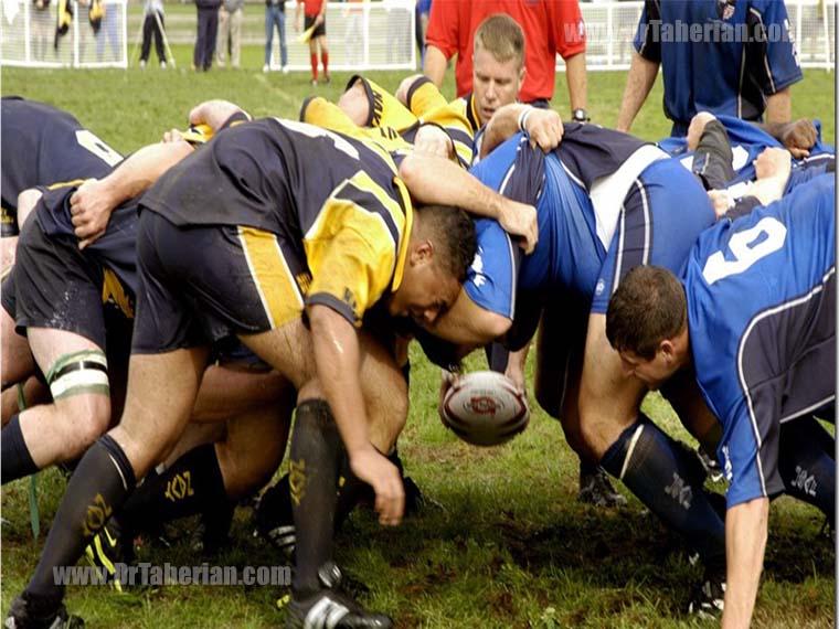 احتمال ایجاد گوش گل کلمی در ورزش های تماسی