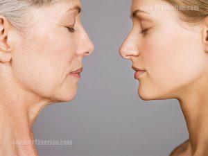 سن مناسب برای عمل بینی