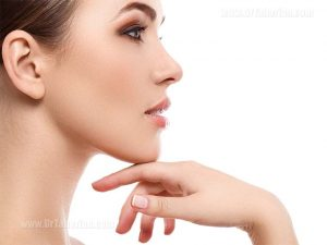 What is chin augmentation? And who is right for this surgery?