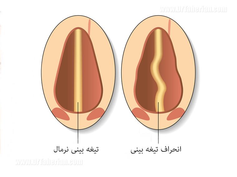 تیغه بینی نرمال - انحراف بینی