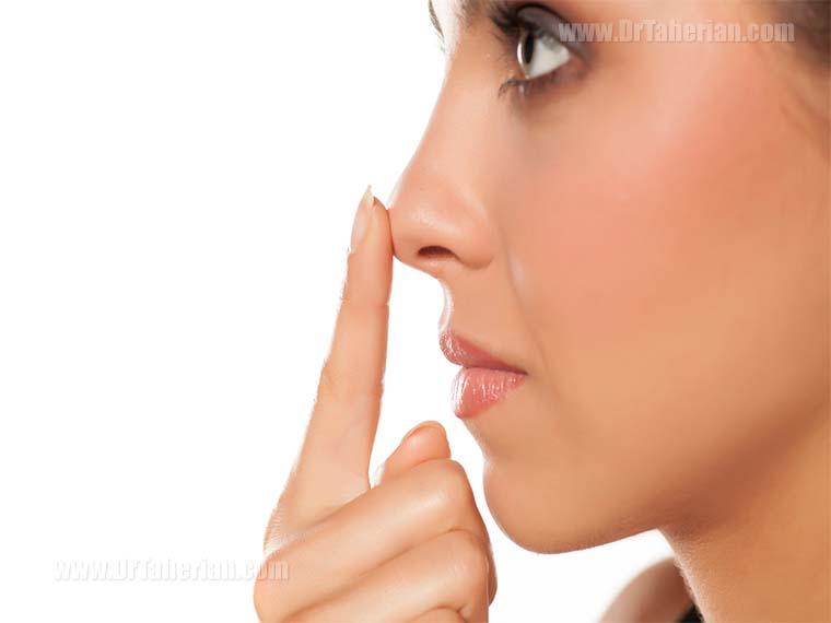 نکات مهم بعد از عمل زیبایی بینی