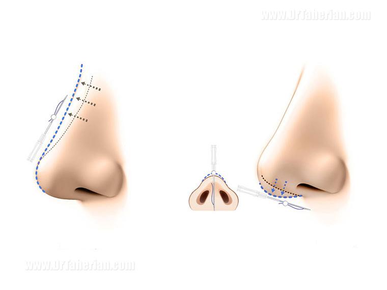 ارتفاع نوک بینی