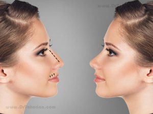 How to choose nose shape?